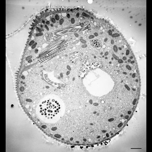 NCBI Organism:Vorticella convallaria; Cell Types:cell by organism, eukaryotic cell, , ; Cell Components:cell, food vacuole, micronucleus, contractile vacuole, contractile vacuole pore, oral apparatus, food vacuole; Biological process:digestive system process, cytoplasm organization, cortical cytoskeleton organization, micronucleus organization, contractile vacuole organization, oral apparatus organization, digestive system process;