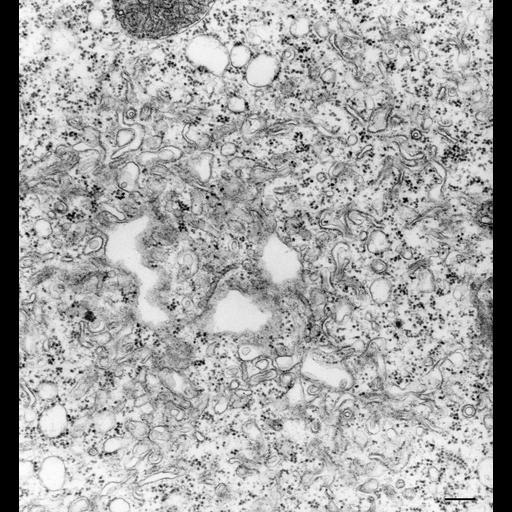 NCBI Organism:Vorticella convallaria; Cell Types:cell by organism, eukaryotic cell, , ; Cell Components:contractile vacuole, vacuolar proton-transporting V-type ATPase complex, ; Biological process:contractile vacuole organization