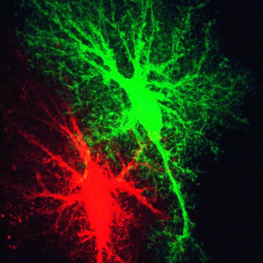 NCBI Organism:Rattus norvegicus; Cell Types:astrocyte Cell Components:cell projection cytoplasm, cell body; Biological process:forebrain astrocyte development, cell projection organization;