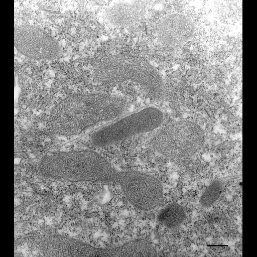 NCBI Organism:Paramecium multimicronucleatum; Cell Types:cell by organism, eukaryotic cell, , ; Cell Components:peroxisome, cytoplasm; Biological process:organelle organization, peroxisome organization, cytoplasm organization;