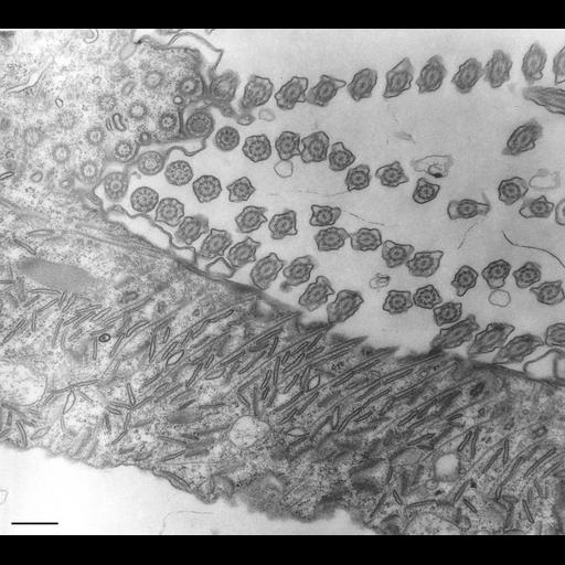 NCBI Organism:Paramecium multimicronucleatum; Cell Types:cell by organism, eukaryotic cell, , ; Cell Components:oral apparatus, microtubule associated complex; Biological process:oral apparatus organization