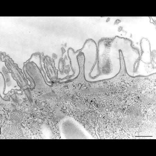 NCBI Organism:Paramecium caudatum; Cell Types:cell by organism, eukaryotic cell, , ; Cell Components:coated pit, , pellicle, cortical cytoskeleton, early endosome; Biological process:cortical cytoskeleton organization, endocytosis;