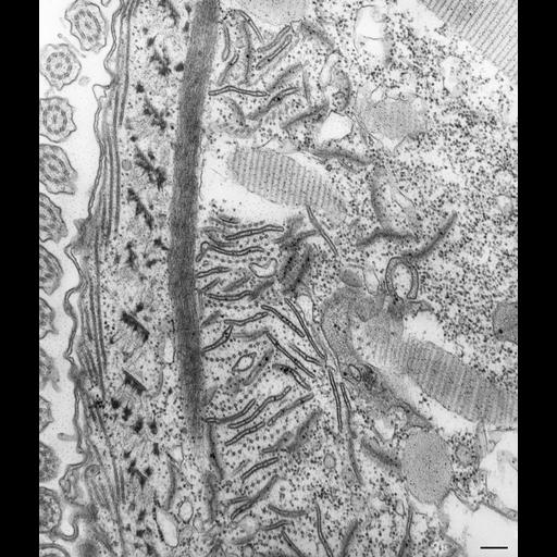 NCBI Organism:Paramecium caudatum; Cell Types:cell by organism, eukaryotic cell, , ; Cell Components:oral apparatus, microtubule associated complex; Biological process:oral apparatus organization, phagocytosis;