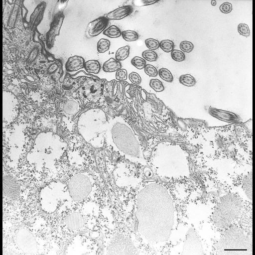 NCBI Organism:Paramecium caudatum; Cell Types:cell by organism, eukaryotic cell, , ; Cell Components:oral apparatus, coated pit, vesicle membrane; Biological process:digestion, digestive system process;