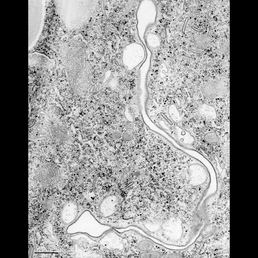 NCBI Organism:Paramecium caudatum; Cell Types:cell by organism, eukaryotic cell, , ; Cell Components:oral apparatus, vacuolar proton-transporting V-type ATPase, V0 domain, ; Biological process:phagocytosis, digestive system process, digestion;