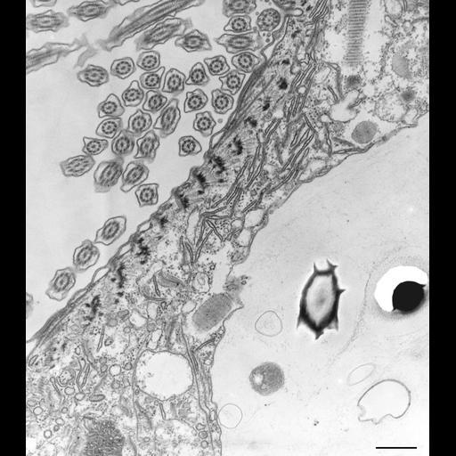 NCBI Organism:Paramecium caudatum; Cell Types:cell by organism, eukaryotic cell, , ; Cell Components:vesicle membrane, endosome; Biological process:phagocytosis