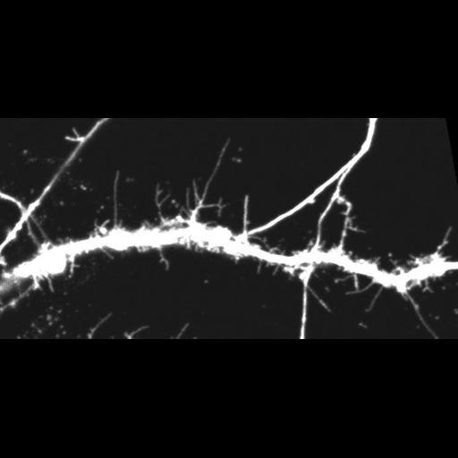 NCBI Organism:Rattus; Cell Types:CNS neuron (sensu Vertebrata) Cell Components:dendritic spine, dendrite, dendritic shaft, cytoplasm; Biological process:dendritic spine development, dendritic spine morphogenesis;