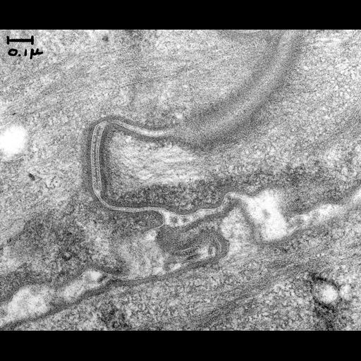 NCBI Organism:Anura; Cell Components:desmosome Biological process:desmosome assembly, plasma membrane organization;