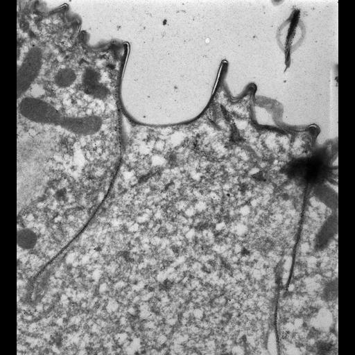 NCBI Organism:Paramecium tetraurelia; Cell Types:cell by organism, eukaryotic cell, , ; Cell Components:cell cortex, contractile vacuole pore, cortical microtubule; Biological process:microtubule cytoskeleton organization, , cortical cytoskeleton organization, cortical microtubule organization;