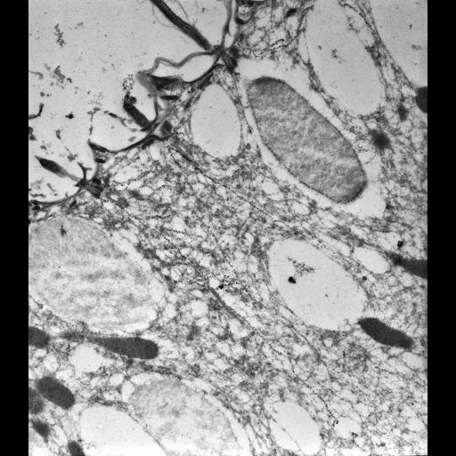 NCBI Organism:Paramecium tetraurelia; Cell Types:cell by organism, eukaryotic cell, , ; Cell Components:cell cortex, cortical microtubule cytoskeleton, cortical microtubule, microtubule basal body, trichocyst; Biological process:microtubule cytoskeleton organization, microtubule basal body organization, cortical microtubule organization;