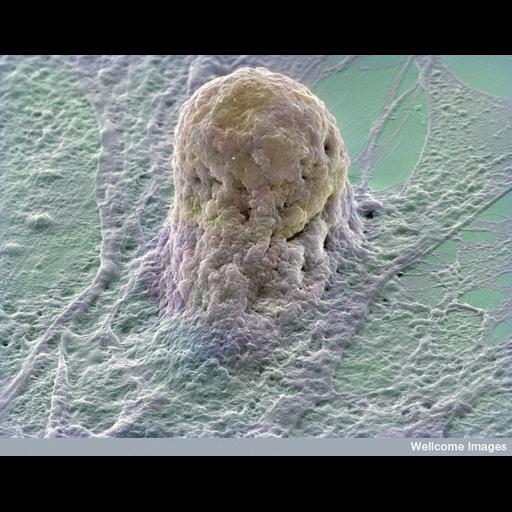 NCBI Organism:Homo sapiens; Cell Types:embryonic stem cell, fibroblast; Cell Components:cell surface Biological process:cellular response to nutrient, acquisition of nutrients from host, cell adhesion;