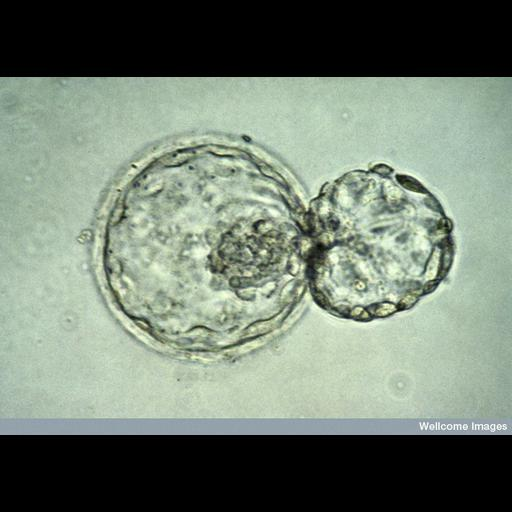 NCBI Organism:Homo sapiens; Cell Types:embryonic cell Biological process:blastocyst hatching