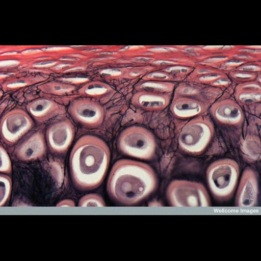 Cell Types:chondrocyte Cell Components:fibrillar collagen, elastic fiber; Biological process:cartilage morphogenesis