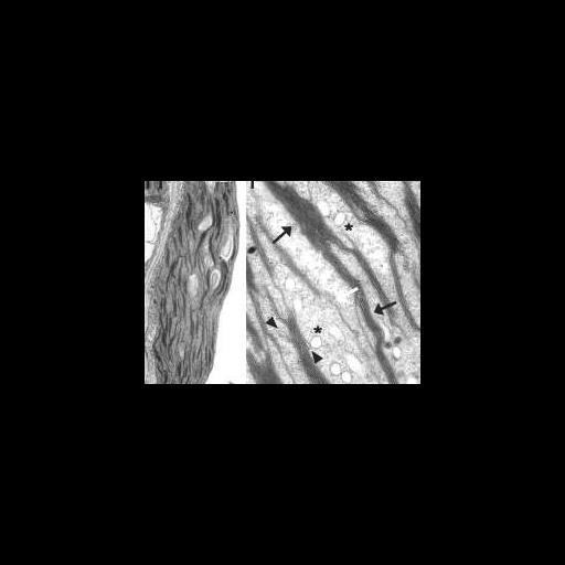 NCBI Organism:Arabidopsis thaliana; Cell Components:chloroplast, plastid thylakoid, granum; Biological process:C4 photosynthesis, organelle organization;
