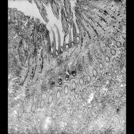 NCBI Organism:Paramecium caudatum; Cell Types:cell by organism, eukaryotic cell, , ; Cell Components:oral apparatus Biological process:oral apparatus organization