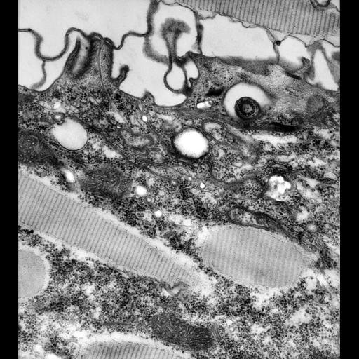 NCBI Organism:Paramecium caudatum; Cell Types:cell by organism, eukaryotic cell, , ; Cell Components:cytoproct, vesicle membrane, microtubule associated complex; Biological process:digestive system process, ;