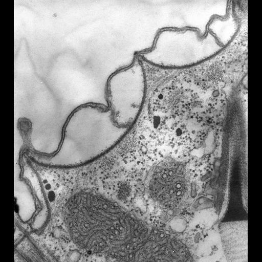 NCBI Organism:Paramecium multimicronucleatum; Cell Types:cell by organism, eukaryotic cell, , ; Cell Components:pellicle, cell cortex; Biological process:plasma membrane organization, cortical cytoskeleton organization;