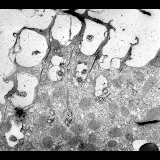 NCBI Organism:Paramecium multimicronucleatum; Cell Types:cell by organism, eukaryotic cell, , ; Cell Components:cell cortex, microtubule basal body, microtubule associated complex; Biological process:cortical cytoskeleton organization
