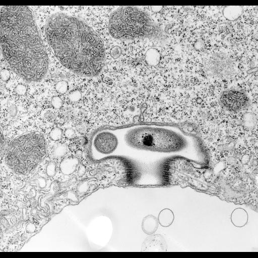 NCBI Organism:Vorticella convallaria; Cell Types:cell by organism, eukaryotic cell, , ; Cell Components:contractile vacuole, plasma membrane, contractile vacuolar membrane, contractile vacuole pore, microtubule associated complex, symbiont-containing vacuolar space; Biological process:contractile vacuole organization, plasma membrane organization, microtubule-based process, detection of symbiont;