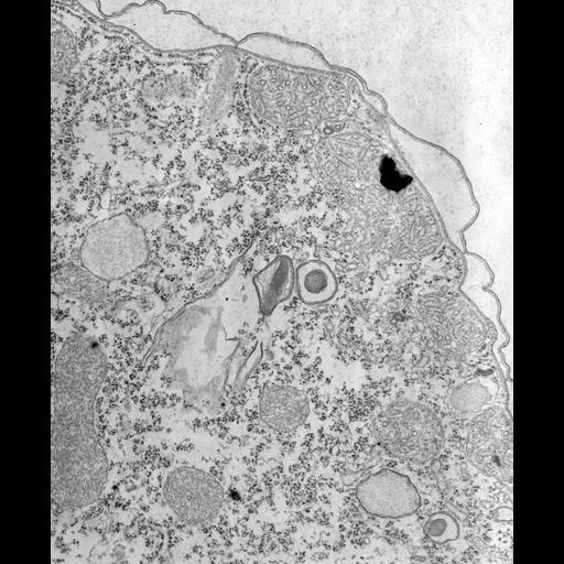 NCBI Organism:Tetrahymena pyriformis; Cell Types:cell by organism, eukaryotic cell, , ; Cell Components:lysosome, , cytoplasm, cell cortex; Biological process:cytoplasm organization