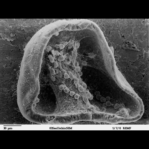 NCBI Organism:Lytechinus pictus; Cell Types:mesenchymal cell Cell Components:cell surface, extracellular space, extracellular matrix; Biological process:cell migration, embryonic morphogenesis;
