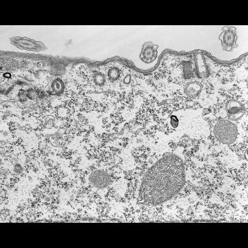 NCBI Organism:Tetrahymena pyriformis; Cell Types:cell by organism, eukaryotic cell, , ; Cell Components:microtubule basal body, microtubule associated complex; Biological process:microtubule basal body duplication