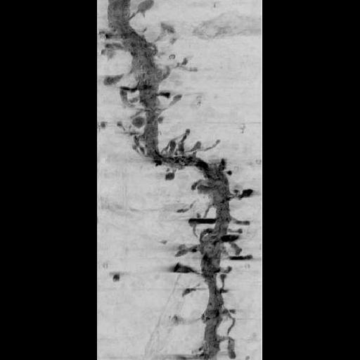 NCBI Organism:Rattus norvegicus; Cell Types:CNS neuron (sensu Vertebrata) Cell Components:dendritic spine, dendrite;