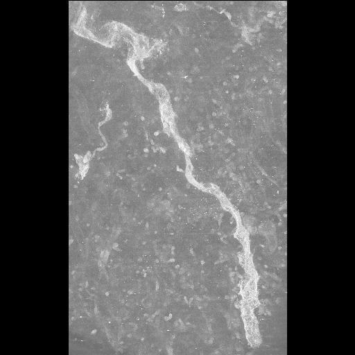 NCBI Organism:Mus musculus; Cell Types:CNS neuron (sensu Vertebrata) Cell Components:dendritic spine, dendrite;