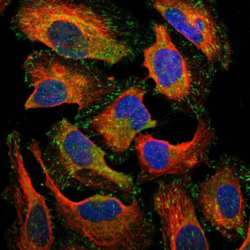 NCBI Organism:Homo sapiens; Cell Components:focal adhesion, cytoplasm, nucleus, microtubule cytoskeleton; Biological process:organelle organization, cytoskeleton organization;