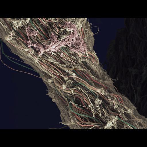 NCBI Organism:Homo sapiens; Cell Components:fibrillar collagen