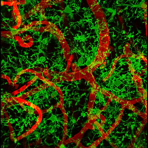 NCBI Organism:Mus musculus; Cell Types:microglial cell Biological process:microglial cell activation involved in immune response