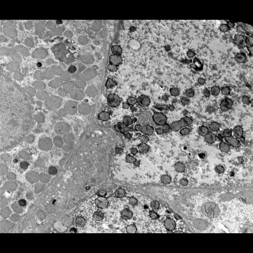 NCBI Organism:Homo sapiens; Cell Components:mitochondrion, peroxisome;