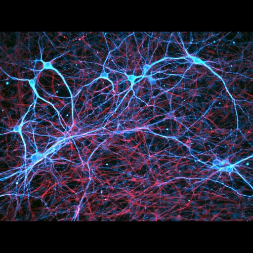 NCBI Organism:Rattus norvegicus; Cell Components:dendrite, cytoskeleton;