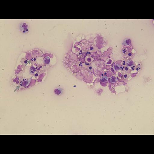 NCBI Organism:Homo sapiens, ; Cell Types:lymphocyte, monocyte; Cell Components:nucleus; Biological process:, ;