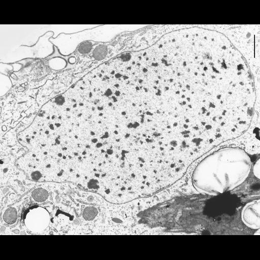 NCBI Organism:Coleps hirtus; Cell Types:eukaryotic cell, , ; Cell Components:macronucleus, nuclear pore, heterochromatin, nucleolus; Biological process:macronucleus organization, nuclear pore organization, chromatin organization, chromosome organization;