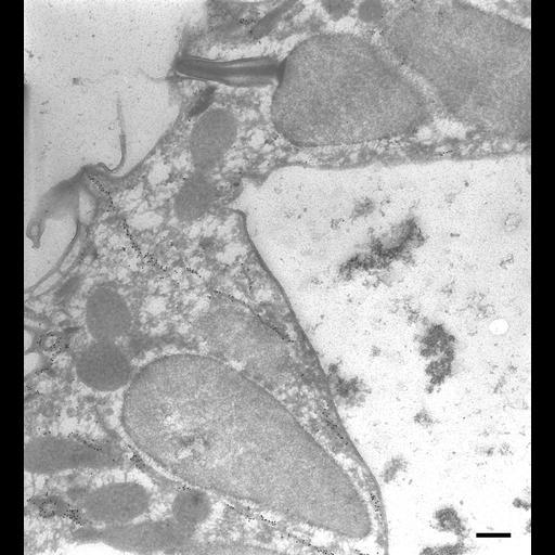 NCBI Organism:Paramecium tetraurelia; Cell Types:cell by organism, eukaryotic cell, , ; Cell Components:cell cortex, cytoproct, trichocyst, microtubule; Biological process:microtubule cytoskeleton organization, ;