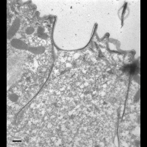 NCBI Organism:Paramecium tetraurelia; Cell Types:cell by organism, eukaryotic cell, , ; Cell Components:cell cortex, contractile vacuole pore, cortical microtubule cytoskeleton; Biological process:contractile vacuole organization, , cortical cytoskeleton organization, cortical microtubule organization;